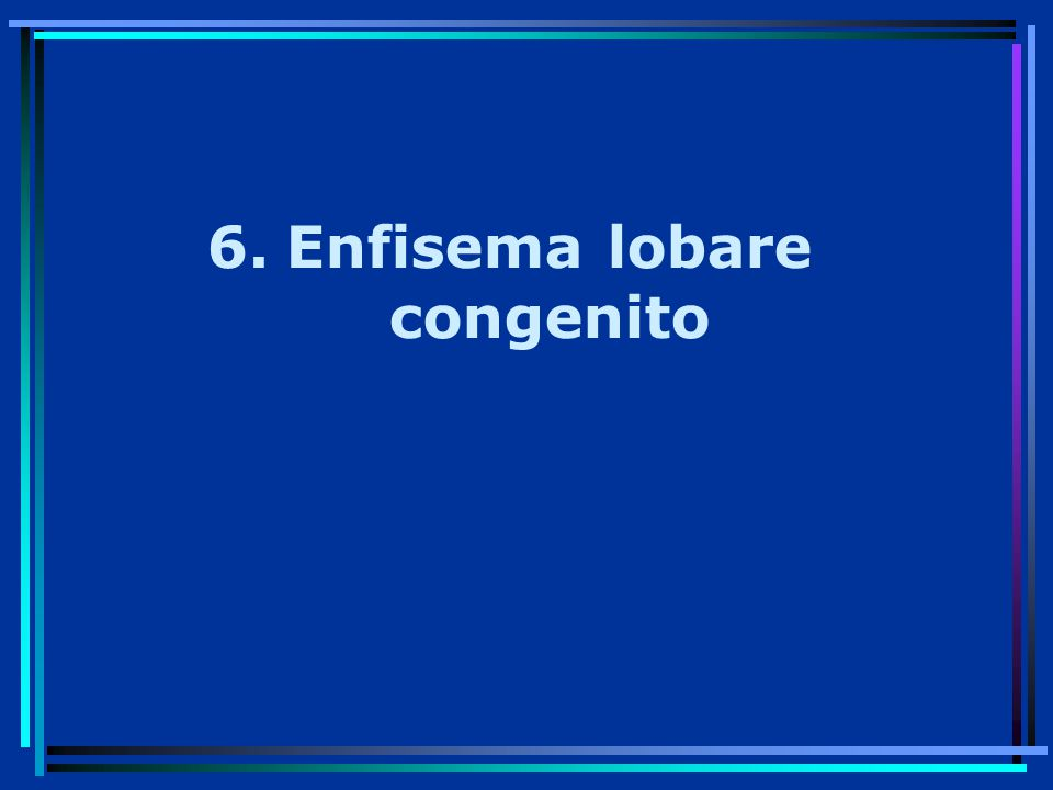 6.Enfisema lobare congenito