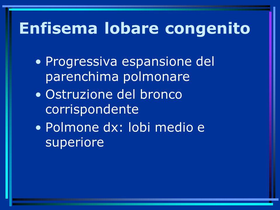 Enfisema lobare congenito Progressiva espansione del parenchima polmonare Ostruzione del bronco corrispondente Polmone dx: lobi medio e superiore