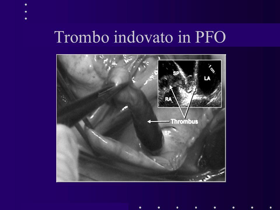 Trombo indovato in PFO