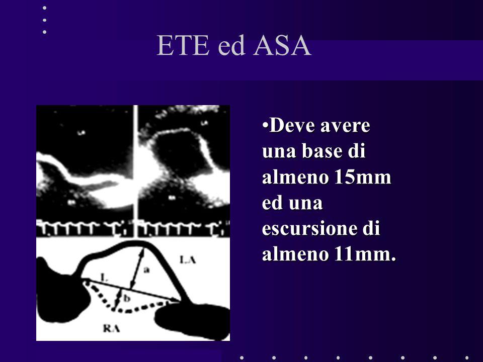ETE ed ASA Deve avere una base di almeno 15mm ed una escursione di almeno 11mm.Deve avere una base di almeno 15mm ed una escursione di almeno 11mm.