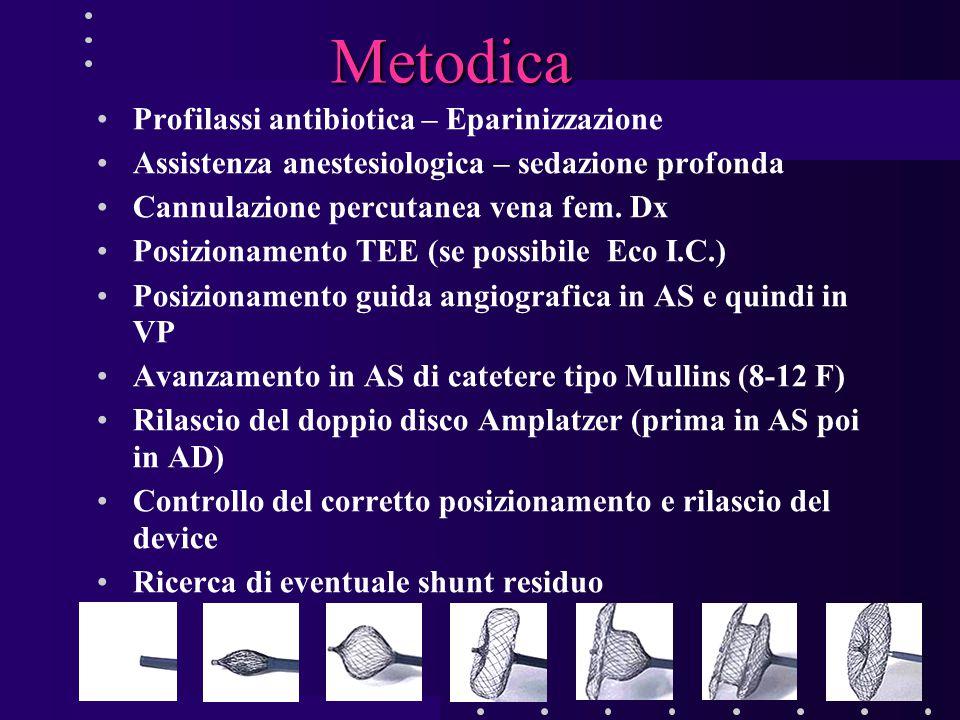 Metodica Profilassi antibiotica – Eparinizzazione Assistenza anestesiologica – sedazione profonda Cannulazione percutanea vena fem. Dx Posizionamento