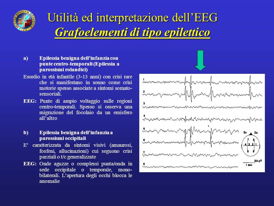 Utilità ed interpretazione dell'EEG Grafoelementi di tipo epilettico a)Epilessia benigna dell'infanzia con punte centro-temporali (Epilessia a parossi