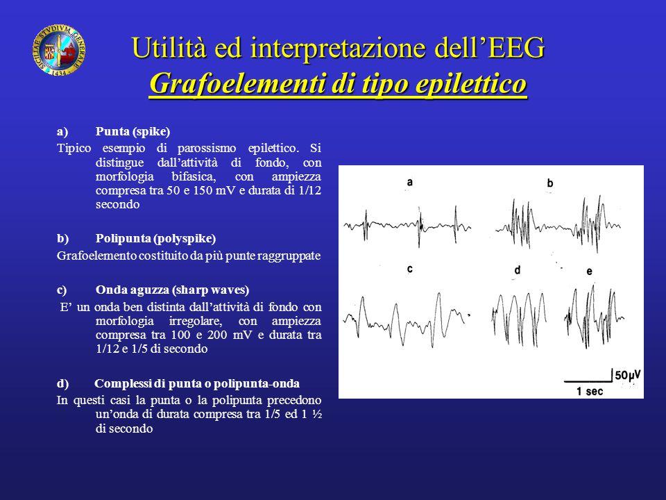 Utilità ed interpretazione dell'EEG Grafoelementi di tipo epilettico a)Punta (spike) Tipico esempio di parossismo epilettico. Si distingue dall'attivi