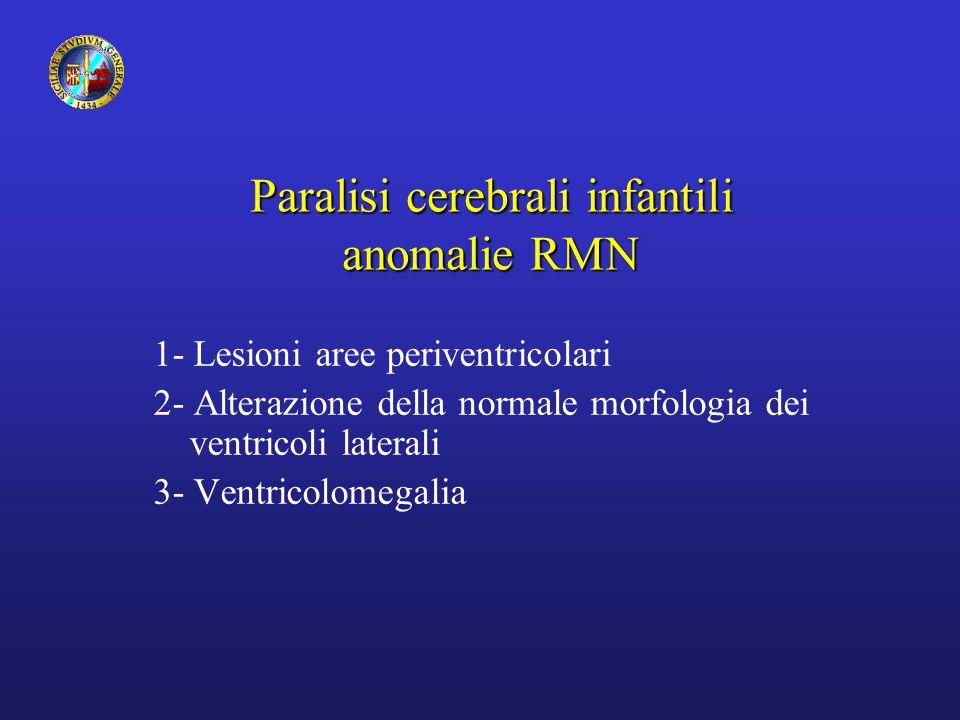 Paralisi cerebrali infantili anomalie RMN 1- Lesioni aree periventricolari 2- Alterazione della normale morfologia dei ventricoli laterali 3- Ventricolomegalia