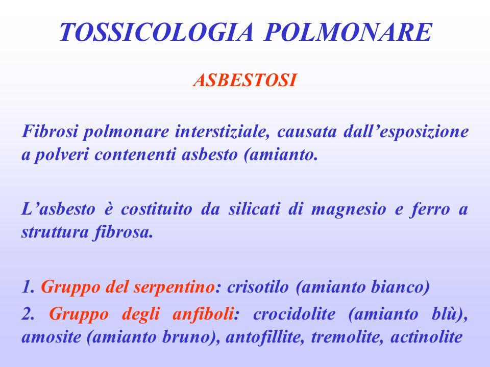 ASBESTOSI Fibrosi polmonare interstiziale, causata dall'esposizione a polveri contenenti asbesto (amianto. L'asbesto è costituito da silicati di magne