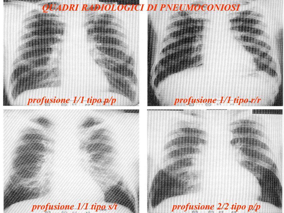 QUADRI RADIOLOGICI DI PNEUMOCONIOSI profusione 1/1 tipo p/pprofusione 1/1 tipo r/r profusione 1/1 tipo s/tprofusione 2/2 tipo p/p
