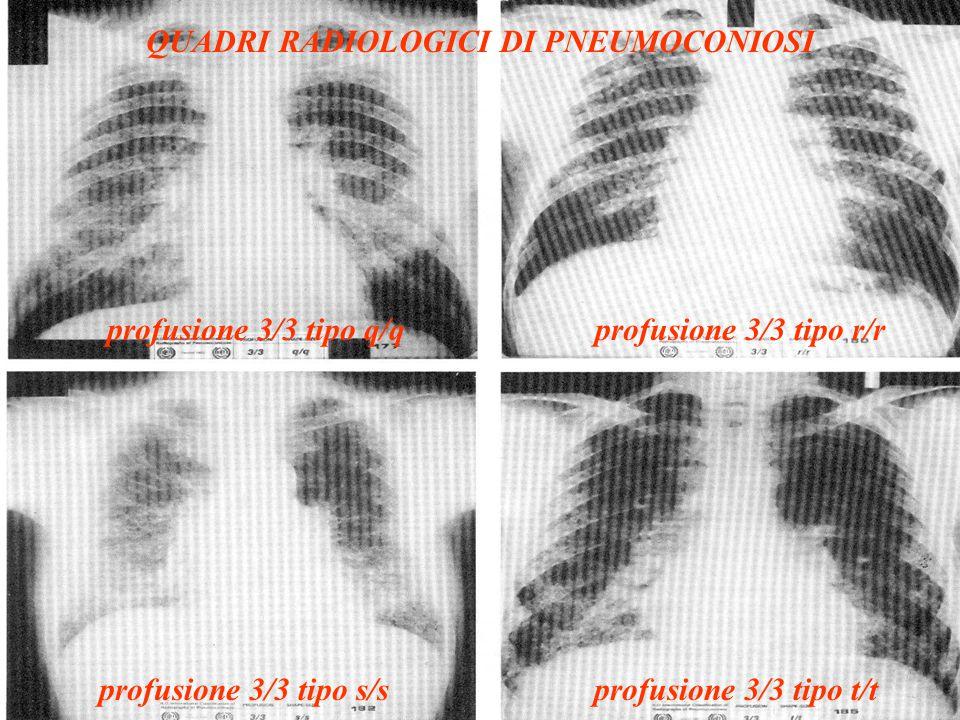 QUADRI RADIOLOGICI DI PNEUMOCONIOSI profusione 3/3 tipo q/qprofusione 3/3 tipo r/r profusione 3/3 tipo s/sprofusione 3/3 tipo t/t