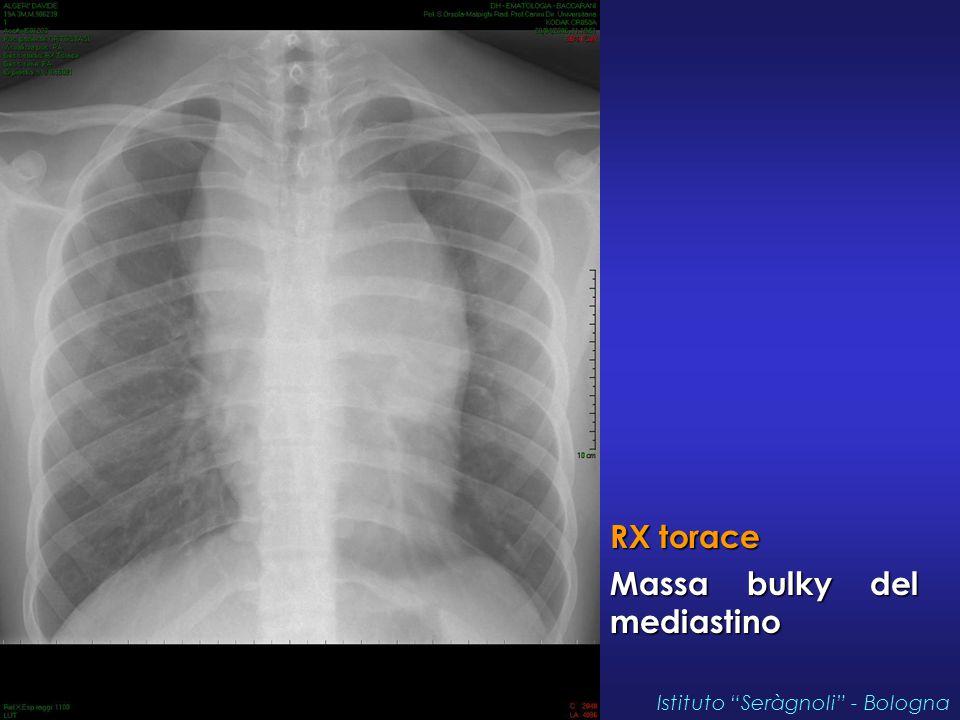 """RX torace Massa bulky del mediastino Istituto """"Seràgnoli"""" - Bologna"""