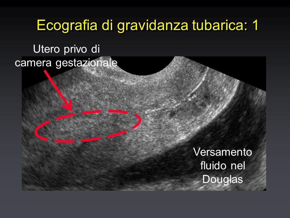 Ecografia di gravidanza tubarica: 1 Versamento fluido nel Douglas Utero privo di camera gestazionale
