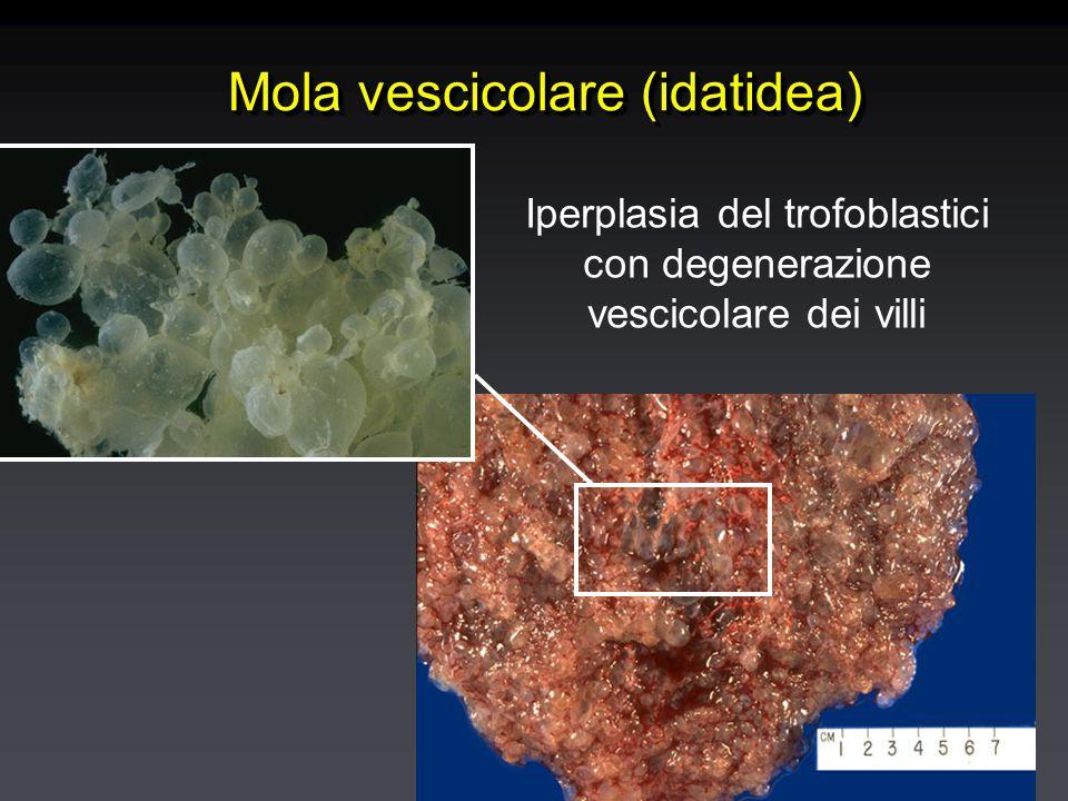 Mola vescicolare (idatidea) Iperplasia del trofoblastici con degenerazione vescicolare dei villi