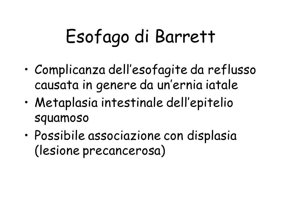 Esofago di Barrett Complicanza dell'esofagite da reflusso causata in genere da un'ernia iatale Metaplasia intestinale dell'epitelio squamoso Possibile associazione con displasia (lesione precancerosa)
