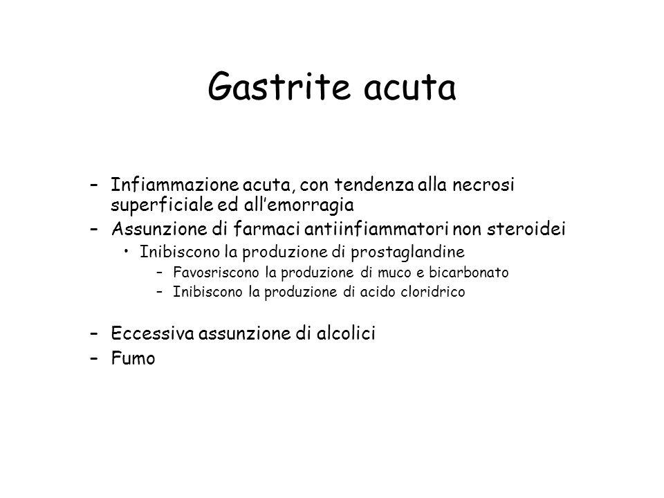 Gastrite acuta –Infiammazione acuta, con tendenza alla necrosi superficiale ed all'emorragia –Assunzione di farmaci antiinfiammatori non steroidei Ini