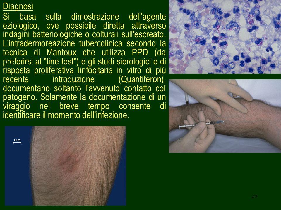 20 Diagnosi Si basa sulla dimostrazione dell agente eziologico, ove possibile diretta attraverso indagini batteriologiche o colturali sull escreato.