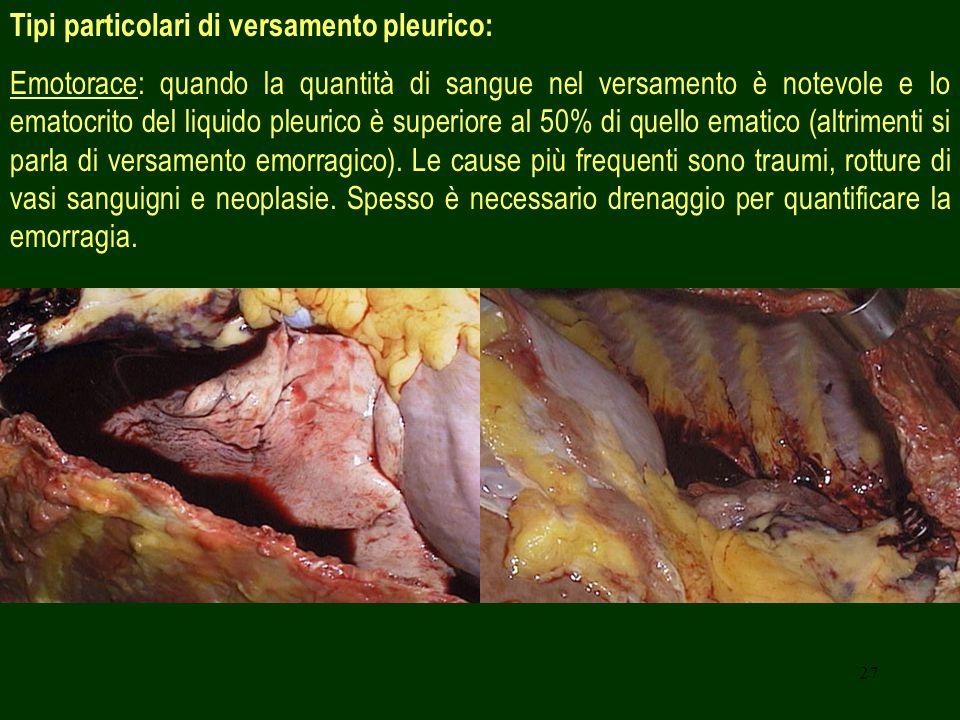 27 Tipi particolari di versamento pleurico: Emotorace: quando la quantità di sangue nel versamento è notevole e Io ematocrito del liquido pleurico è superiore al 50% di quello ematico (altrimenti si parla di versamento emorragico).