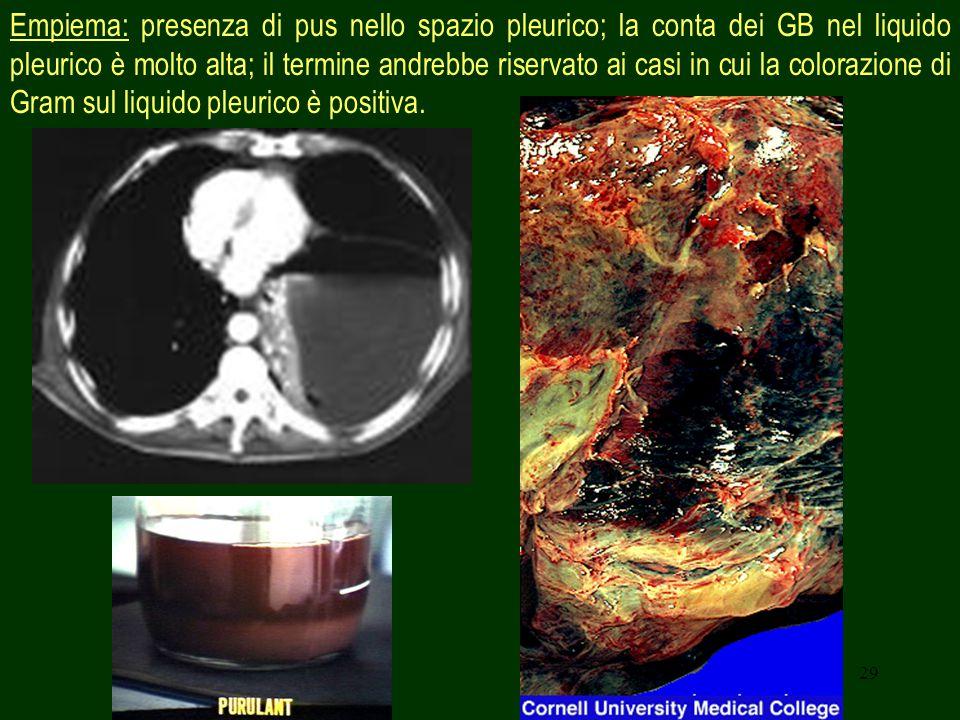 29 Empiema: presenza di pus nello spazio pleurico; la conta dei GB nel liquido pleurico è molto alta; il termine andrebbe riservato ai casi in cui la colorazione di Gram sul liquido pleurico è positiva.