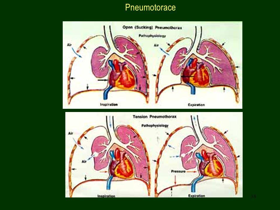 38 Pneumotorace