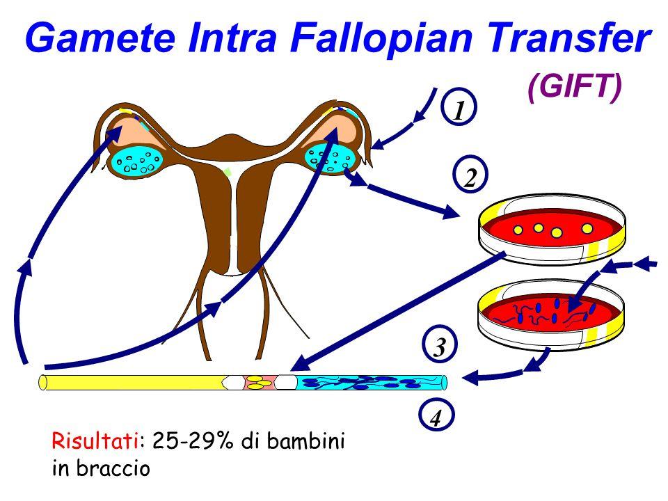 Gamete Intra Fallopian Transfer (GIFT) 1 2 3 4 Risultati: 25-29% di bambini in braccio