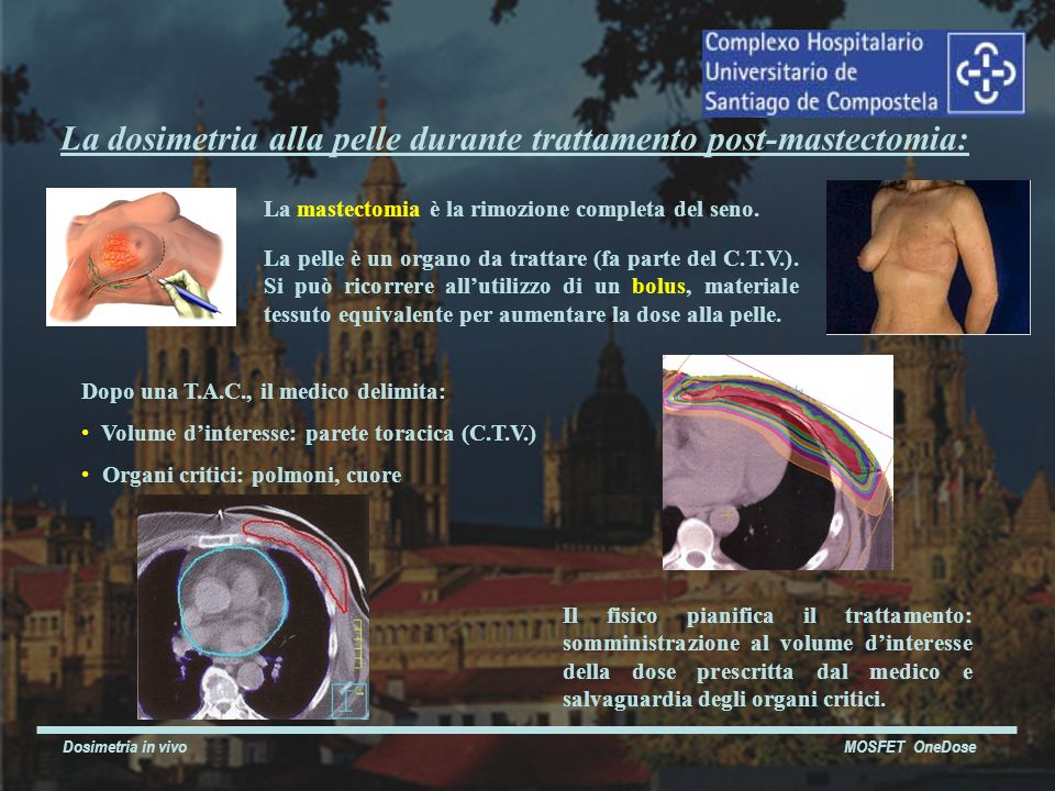Dosimetria in vivo MOSFET OneDose La mastectomia è la rimozione completa del seno.