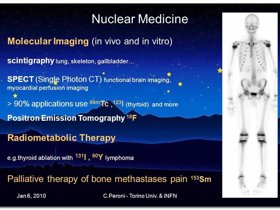 Jan 6, 2010C.Peroni - Torino Univ. & INFN4 Nuclear Medicine Molecular Imaging (in vivo and in vitro) scintigraphy lung, skeleton, gallbladder… SPECT (