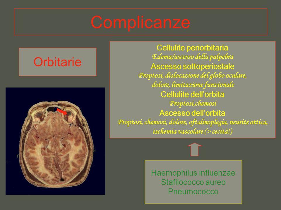 Complicanze Orbitarie Cellulite periorbitaria Edema/ascesso della palpebra Ascesso sottoperiostale Proptosi, dislocazione del globo oculare, dolore, l