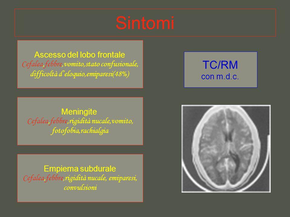 Sintomi Ascesso del lobo frontale Cefalea,febbre,vomito,stato confusionale, difficoltà d'eloquio,emiparesi(48%) Meningite Cefalea,febbre,rigidità nucale,vomito, fotofobia,rachialgia Empiema subdurale Cefalea,febbre,rigidità nucale, emiparesi, convulsioni TC/RM con m.d.c.