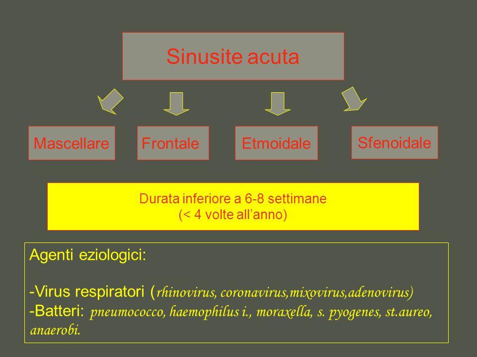 Sinusite acuta MascellareFrontaleEtmoidale Sfenoidale Agenti eziologici: -Virus respiratori ( rhinovirus, coronavirus,mixovirus,adenovirus) -Batteri: pneumococco, haemophilus i., moraxella, s.