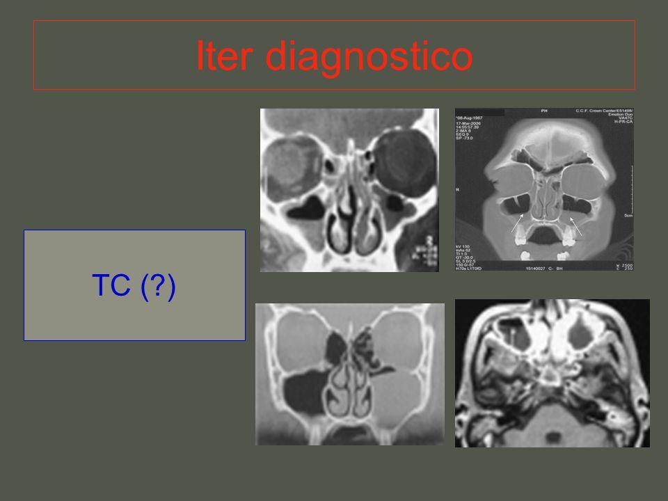 Iter diagnostico TC (?)