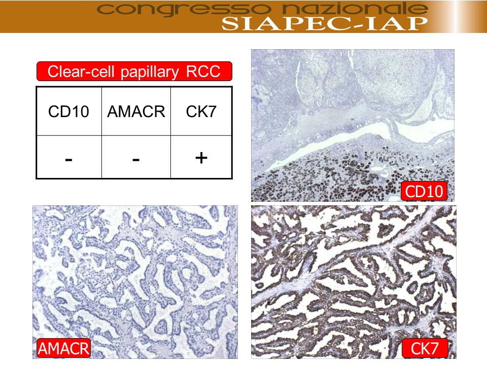 AMACRCK7 CD10 AMACRCK7 --+ Clear-cell papillary RCC