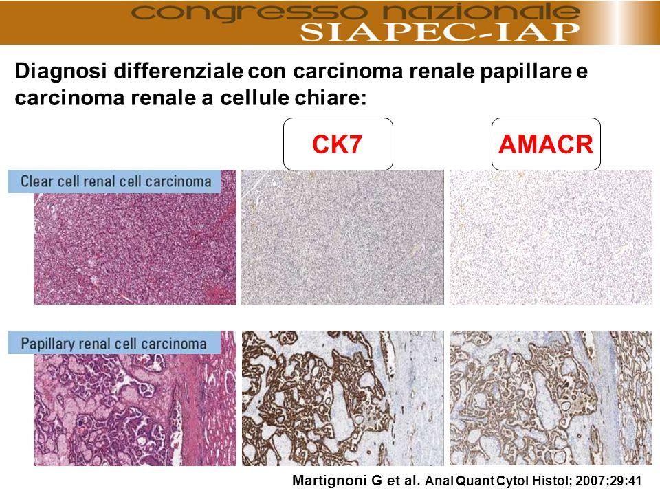 CK7AMACR Martignoni G et al. Anal Quant Cytol Histol; 2007;29:41 Diagnosi differenziale con carcinoma renale papillare e carcinoma renale a cellule ch