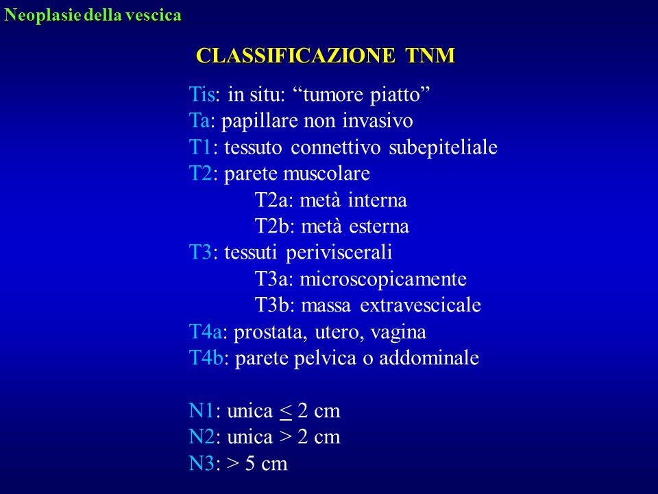 """CLASSIFICAZIONE TNM Tis: in situ: """"tumore piatto"""" Ta: papillare non invasivo T1: tessuto connettivo subepiteliale T2: parete muscolare T2a: metà inter"""