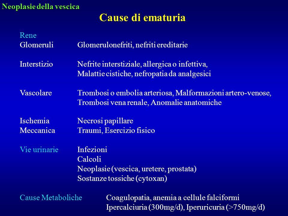Cause di ematuria Rene GlomeruliGlomerulonefriti, nefriti ereditarie InterstizioNefrite interstiziale, allergica o infettiva, Malattie cistiche, nefro