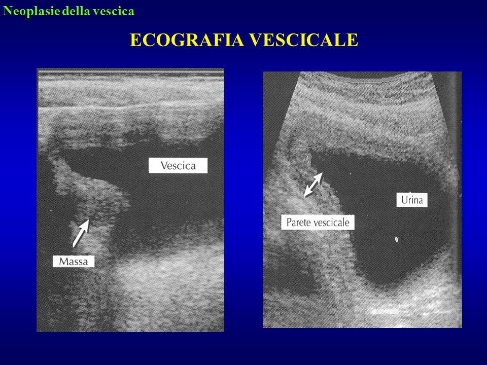 ECOGRAFIA VESCICALE Neoplasie della vescica
