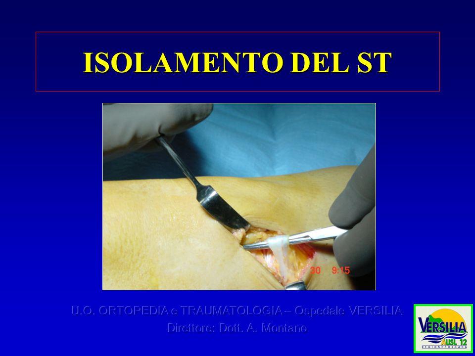 ISOLAMENTO DEL ST