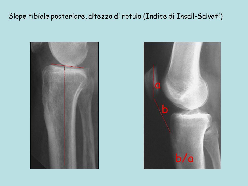 b a Slope tibiale posteriore, altezza di rotula (Indice di Insall-Salvati) b/a
