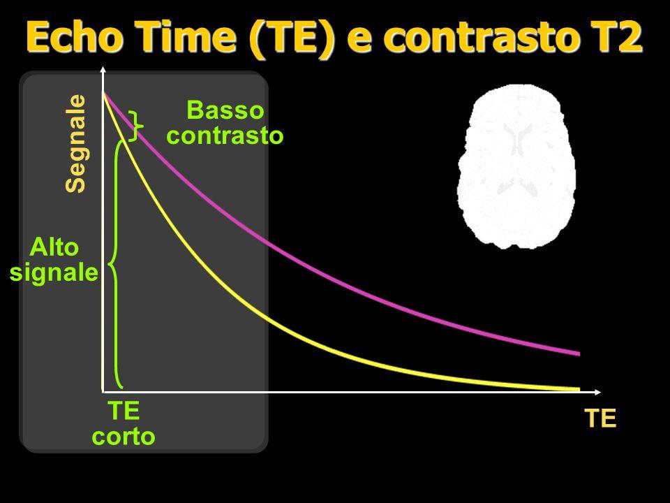 TE Segnale Medio contrast Basso signal TE lungo Echo Time (TE) e contrasto T2