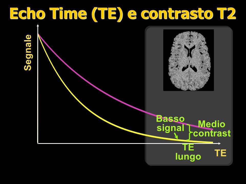 TE Signal Alto contrasto Signale medio Medio TE Echo Time (TE) e contrasto T2