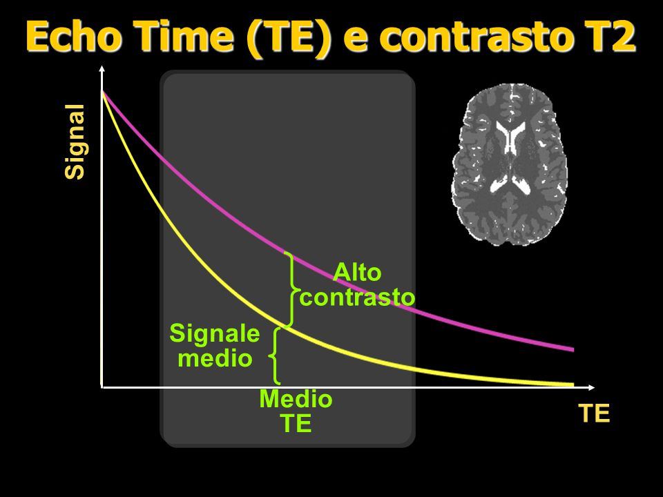 La magnetizzazione si riallinea con il campo principale in un tempo T 1 Il T 1 è diverso per ogni tessuto Ma...