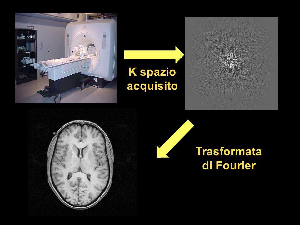 T1-Weighted Images Le sequenze per acquisire immagine pesate in T1 sono create e ottimizzate per creare immagini con contrasto tra sostanza grigia, bianca e liquor Tre fette assiali: Risoluzione spaziale di 1 mm3 Tempo d`acquisizione per l`intero cervello 10 minuti
