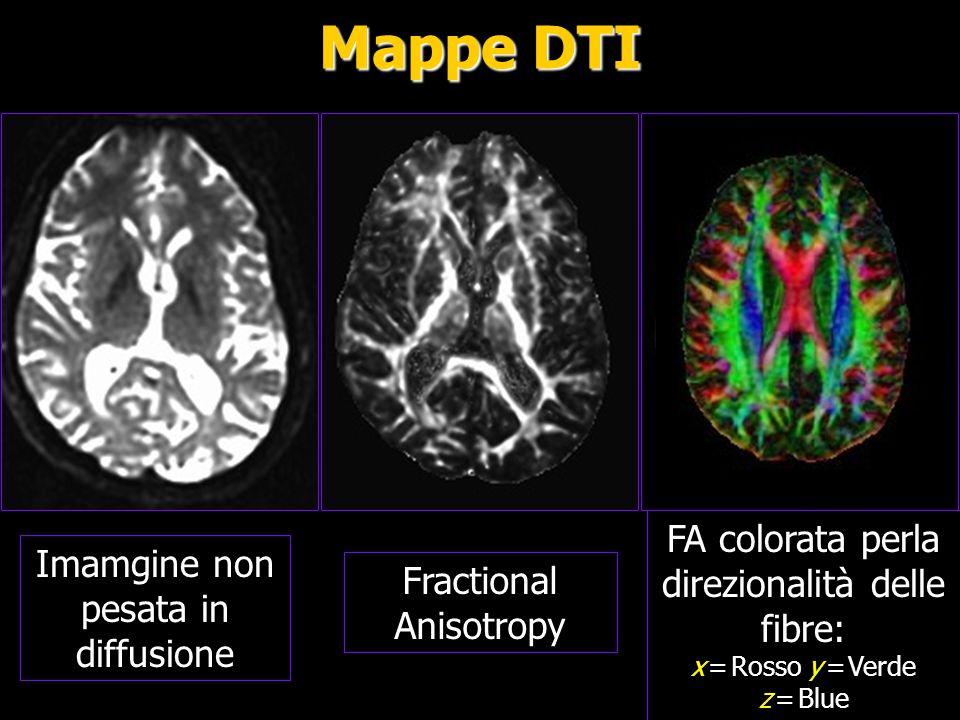 Mappa a colori dei principali fasci FA: Fractional Anisotropy; : Mean Diffusivity