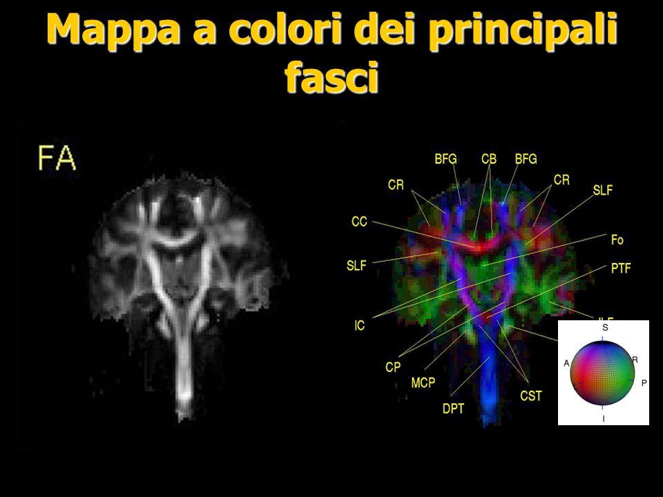 Field of Diffusion Tensor Ellipsoids Mappa a colori Zoom sul corpo calloso che presenta un andamento delle fibre lungo l`asse X