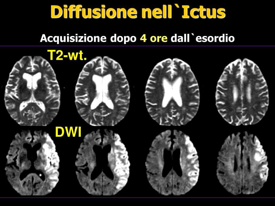 FMRI è una tecnica utilizzata per misurare la variazione di ossigeno durante l`attività neuronale Functional MRI (fMRI) Riposo Attività L`incremento dell`attività neuronale comporta un aumento del segnale MR