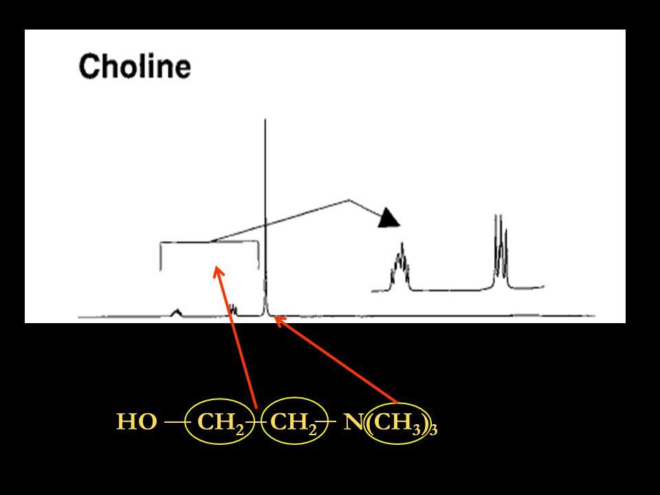 H 2 O  55M Metaboliti pochi mM NAA Segnale dell'acqua in 1 H-MRS