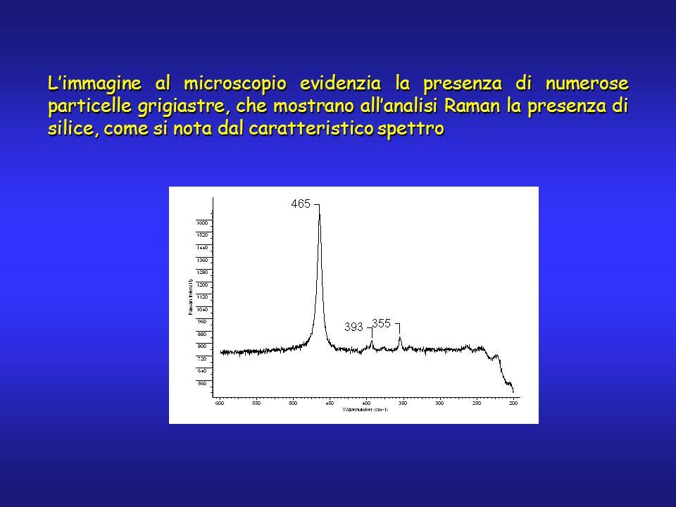 L'immagine al microscopio evidenzia la presenza di numerose particelle grigiastre, che mostrano all'analisi Raman la presenza di silice, come si nota dal caratteristico spettro