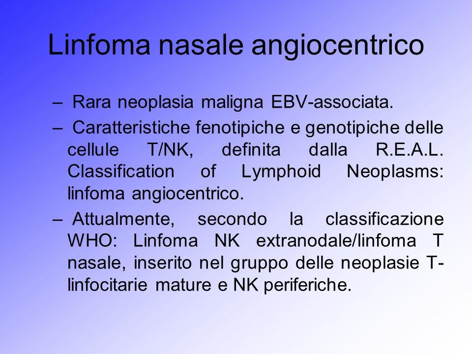 Linfoma nasale angiocentrico – Rara neoplasia maligna EBV-associata. – Caratteristiche fenotipiche e genotipiche delle cellule T/NK, definita dalla R.