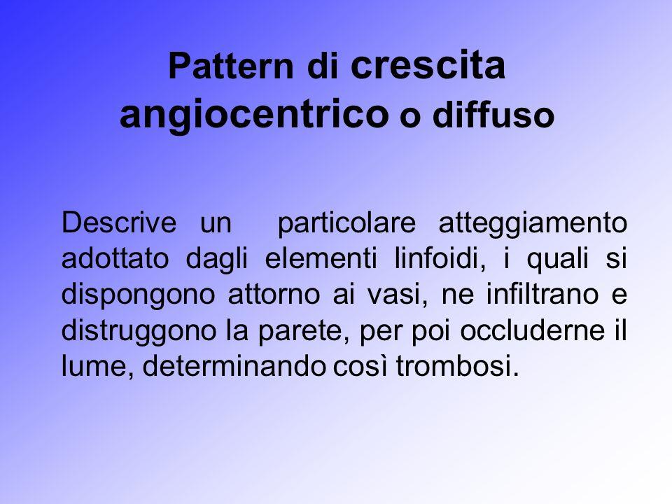 Pattern di crescita angiocentrico o diffuso Descrive un particolare atteggiamento adottato dagli elementi linfoidi, i quali si dispongono attorno ai v