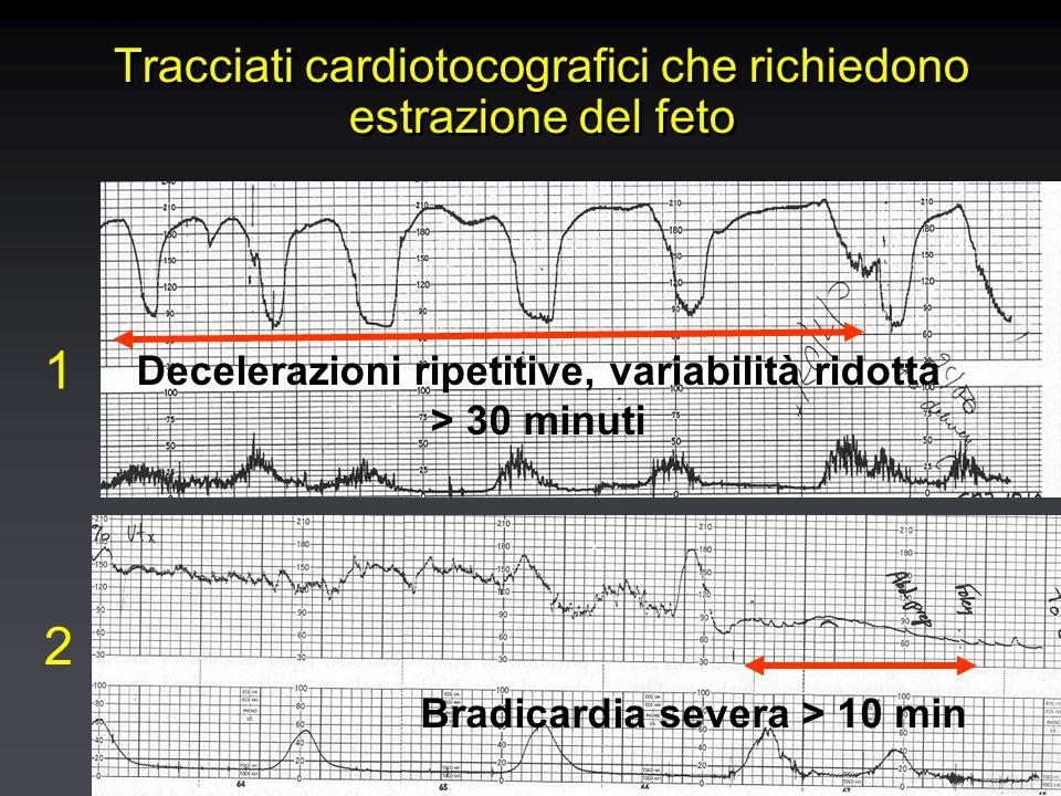 Tracciati cardiotocografici che richiedono estrazione del feto Decelerazioni ripetitive, variabilità ridotta > 30 minuti 1 Bradicardia severa > 10 min 2