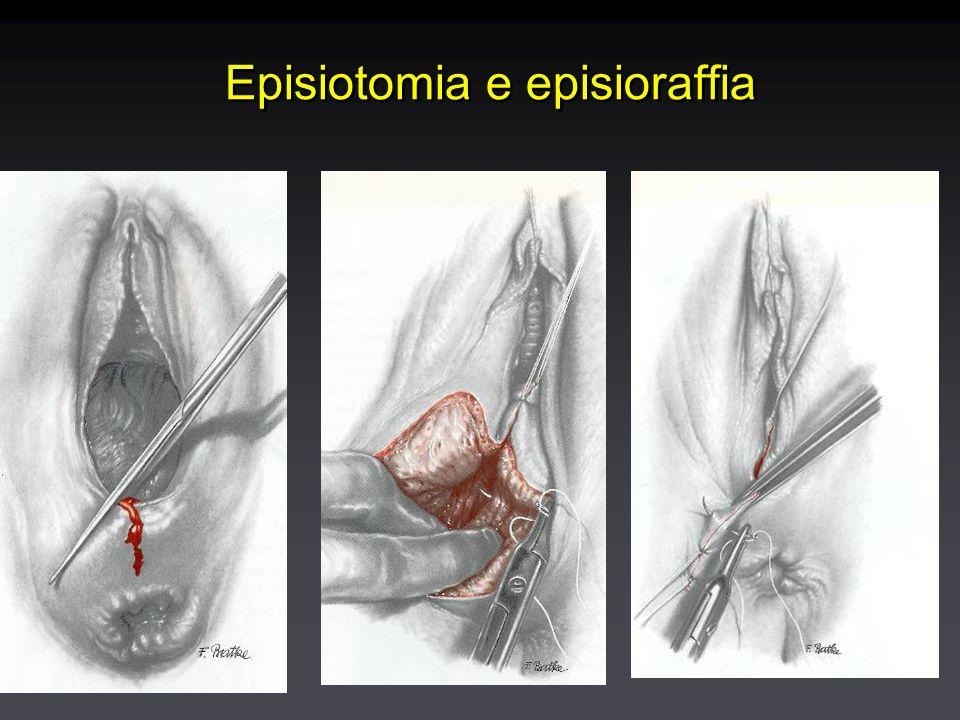 Episiotomia e episioraffia