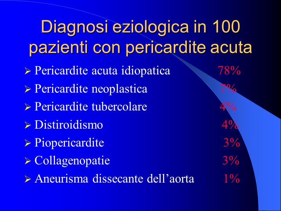 Diagnosi eziologica in 100 pazienti con pericardite acuta  Pericardite acuta idiopatica 78%  Pericardite neoplastica 7%  Pericardite tubercolare 4%