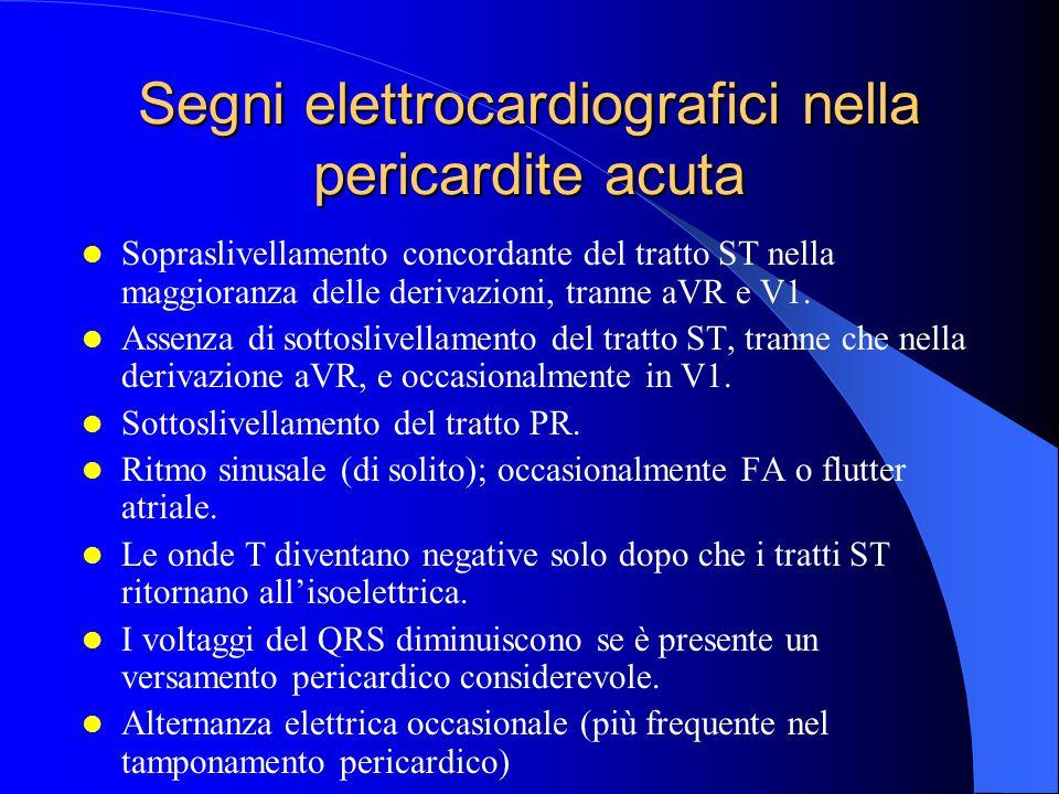 Segni elettrocardiografici nella pericardite acuta Sopraslivellamento concordante del tratto ST nella maggioranza delle derivazioni, tranne aVR e V1.