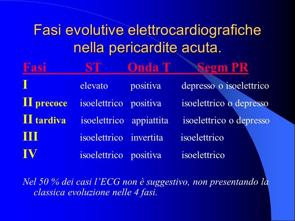 Fasi evolutive elettrocardiografiche nella pericardite acuta. Fasi ST Onda T Segm PR I elevato positiva depresso o isoelettrico II precoce isoelettric